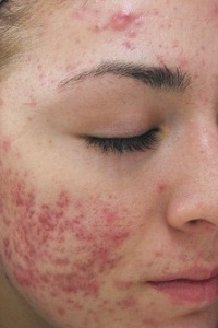 What is the Treatment for Rosacea?