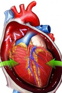 What are the Causes of Enlarged Heart (Cardiomegaly)?