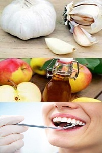 Home Remedies for Tooth Decay (Dental Cavity)