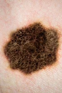 What You Should Know About Stage 0 Melanoma (Melanoma in situ)?
