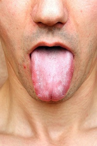 What are the Causes of Dry Mouth (Xerostomia)