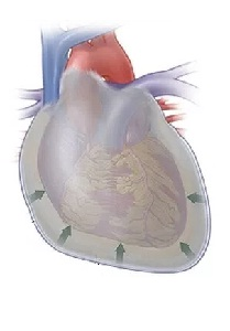 Pericarditis: Symptoms, Causes, Diagnosis, Treatment, Complications