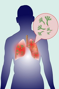 Lung Cancer: Symptoms, Causes, Diagnosis, Treatment