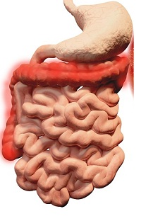 Ulcerative Colitis Flare-Ups: Tips to Manage Them
