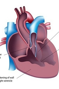 Ventricular Septal Defect (VSD): Causes, Symptoms, Diagnosis, Treatment