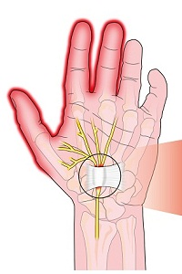 Carpal Tunnel Syndrome (CTS): Causes, Symptoms, Diagnosis, Treatment