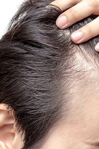 Is Dandruff Hereditary or Hormonal?