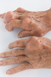 What Does Gout Look Like? How Do You Know You Have Gout?