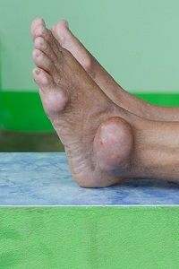 Does Gout Go Away On Its Own? Can You Permanently Cure Gout?