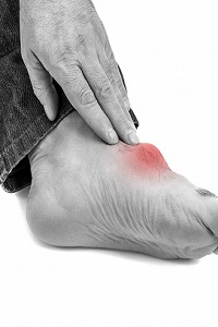 Duration of Gout and Gout Attacks: How Long Does Gout Last?
