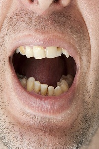 Loose Tooth Pain: Top Home Remedies for Loose Tooth Pain Relief