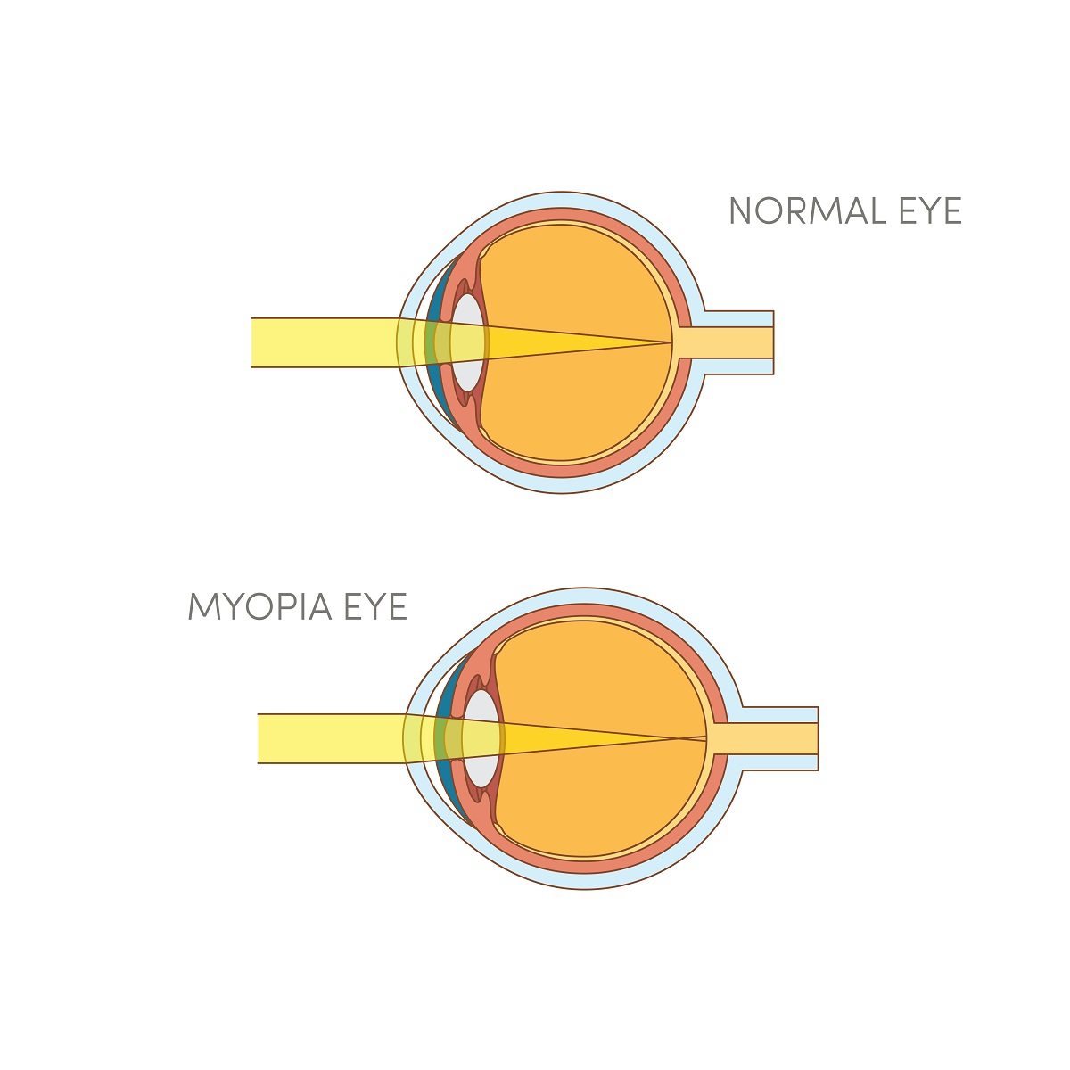 Normal Eye VS Eye with Myopia