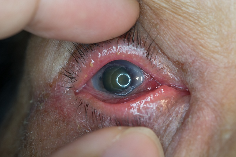 Acute angle closure glaucoma in a patient's eye