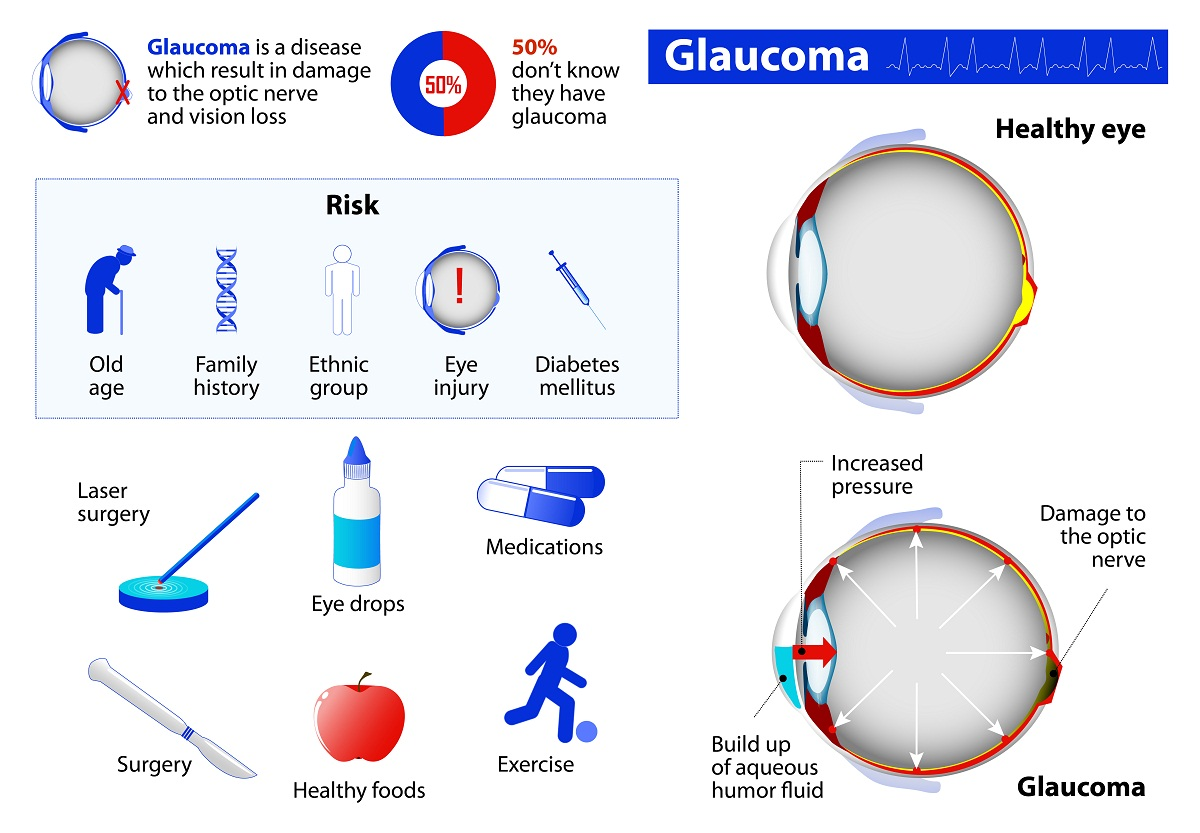 What you should know about glaucoma?