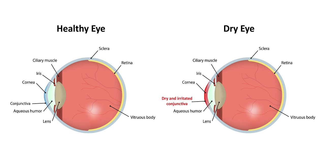 A healthy eye vs a dry eye
