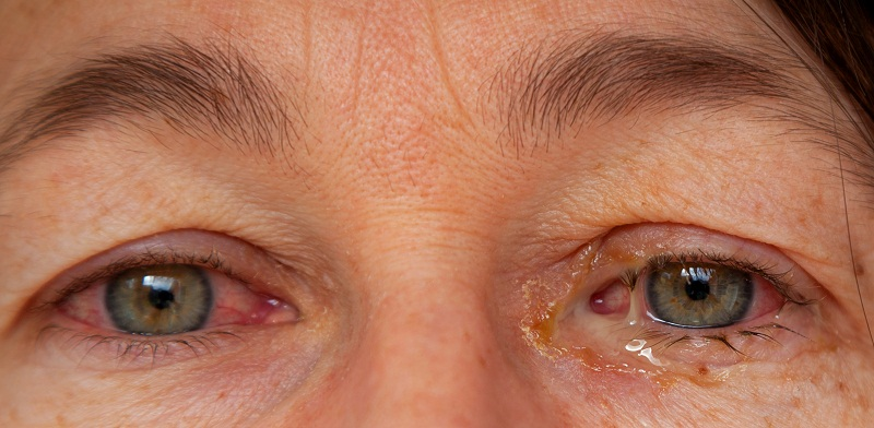 Discharge from eyes with conjunctivitis