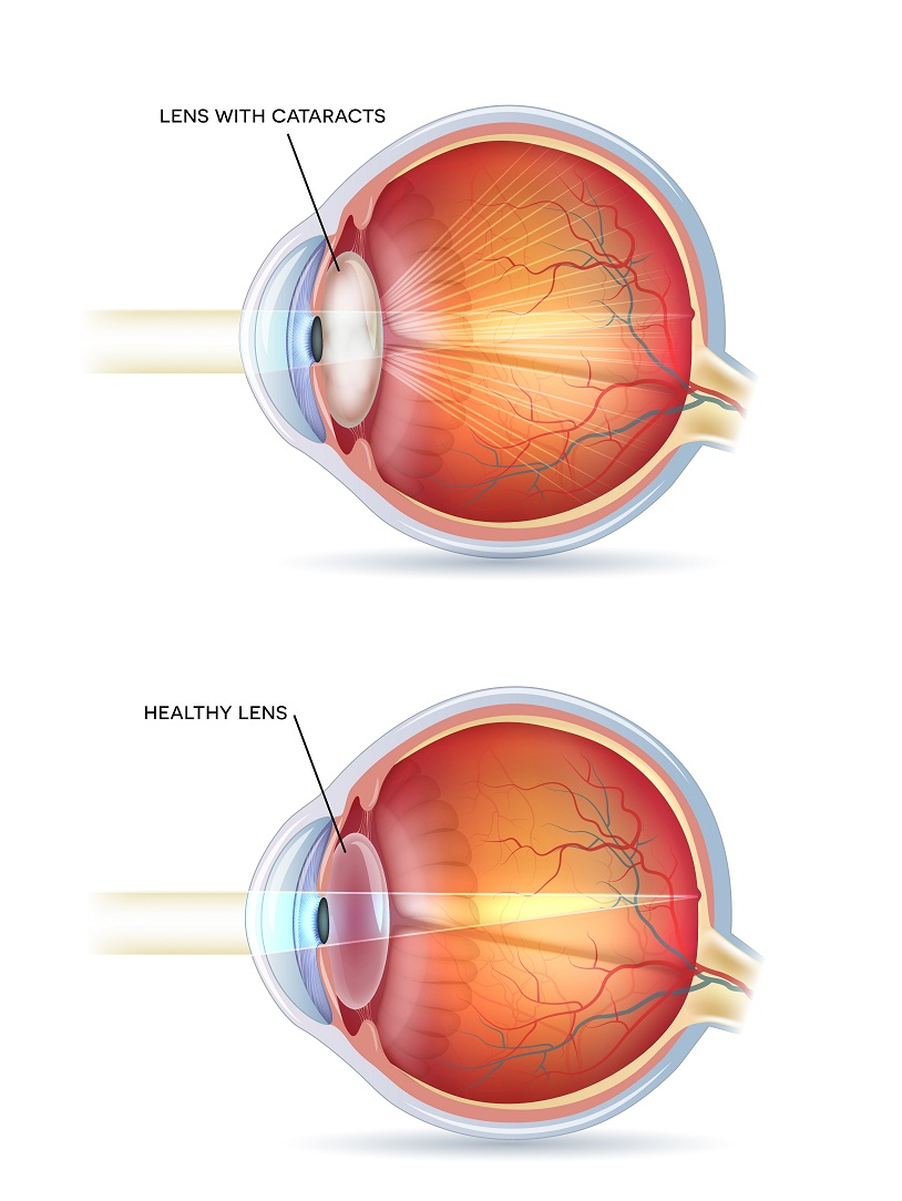 Lens with cataracts vs healthy lens