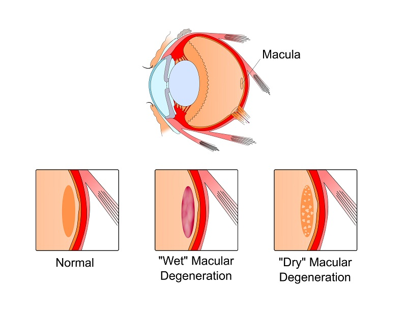 How does AMD affect your eyes?