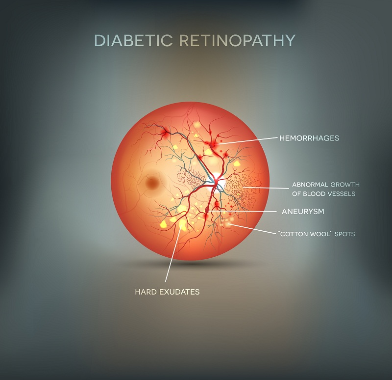 Damages due to diabetic retinopathy on your eyes