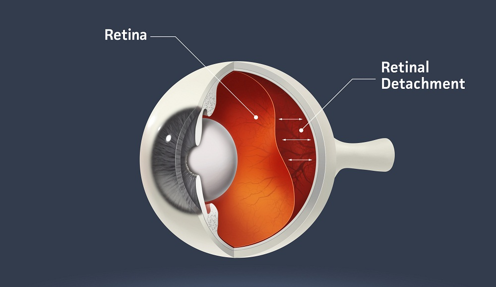 An illustration of retinal detachment