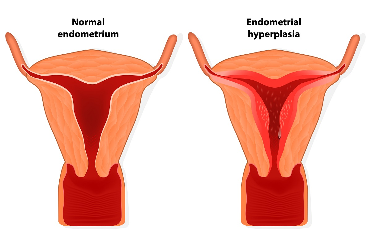 Normal endometrium vs endometrium in a woman with hyperplasia