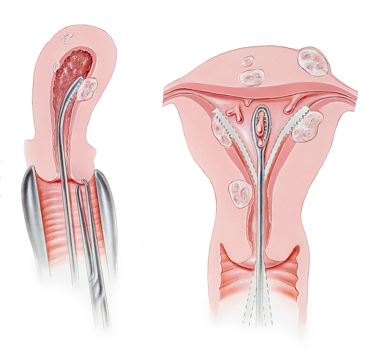 Uterus - Dilation and Curettage Procedure