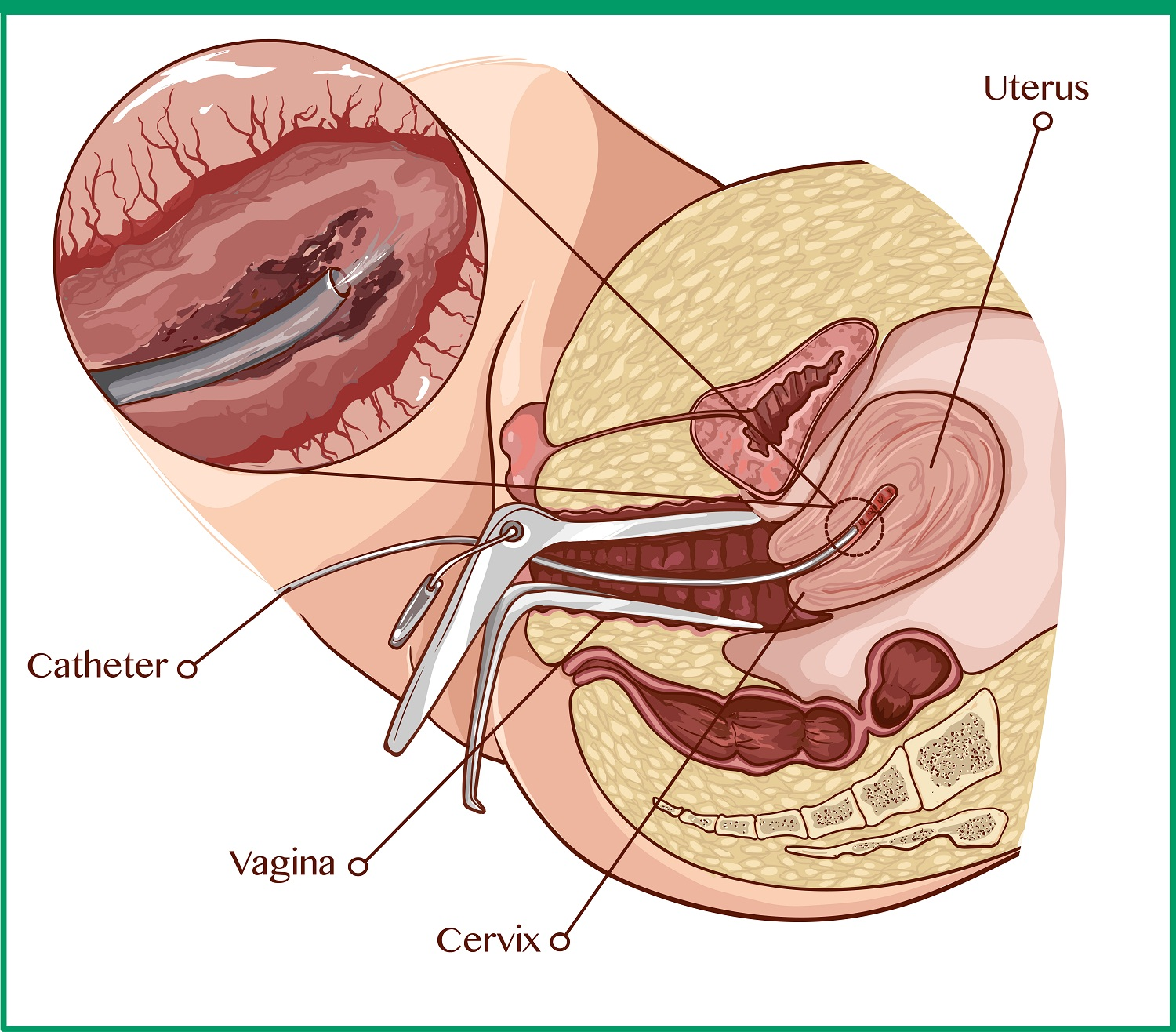 Illustration of an endometrial biopsy