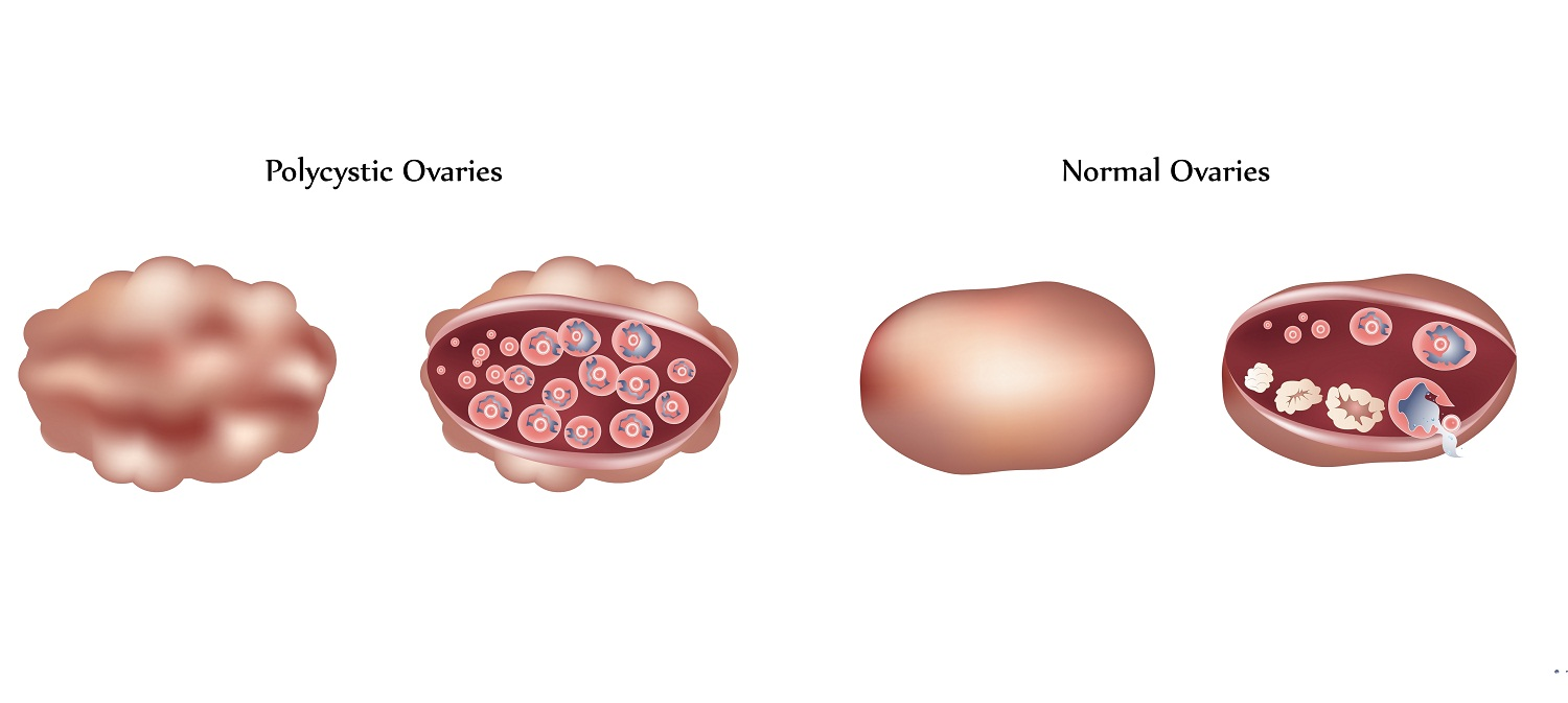 Polycystic ovaries vs normal ovaries