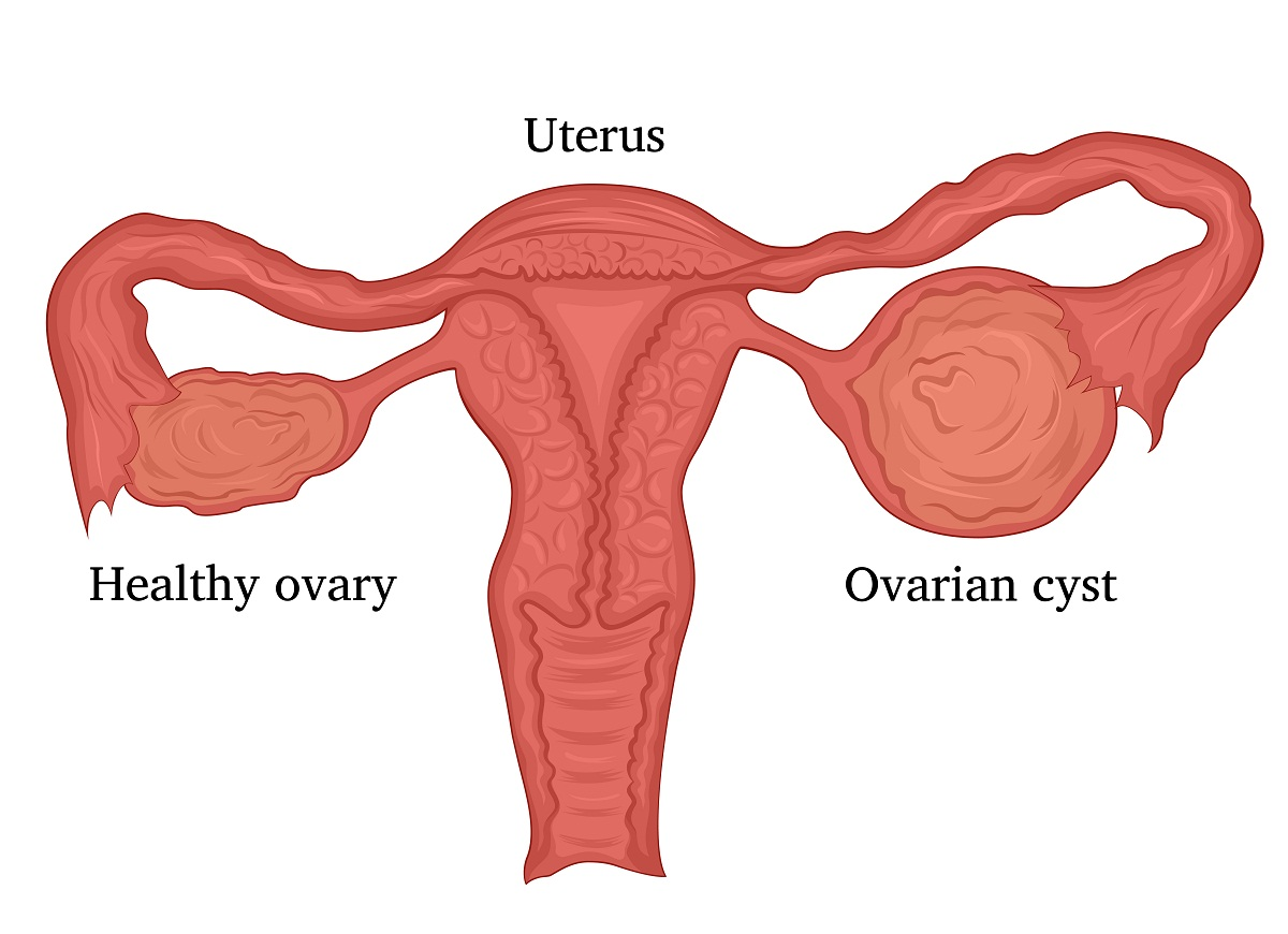 Illustration of a female disease - Ovarian cysts