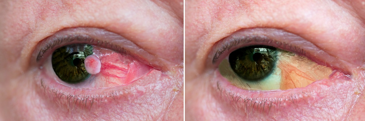 Conjunctiva squamous cell carcinoma before and after surgical removal in a patient