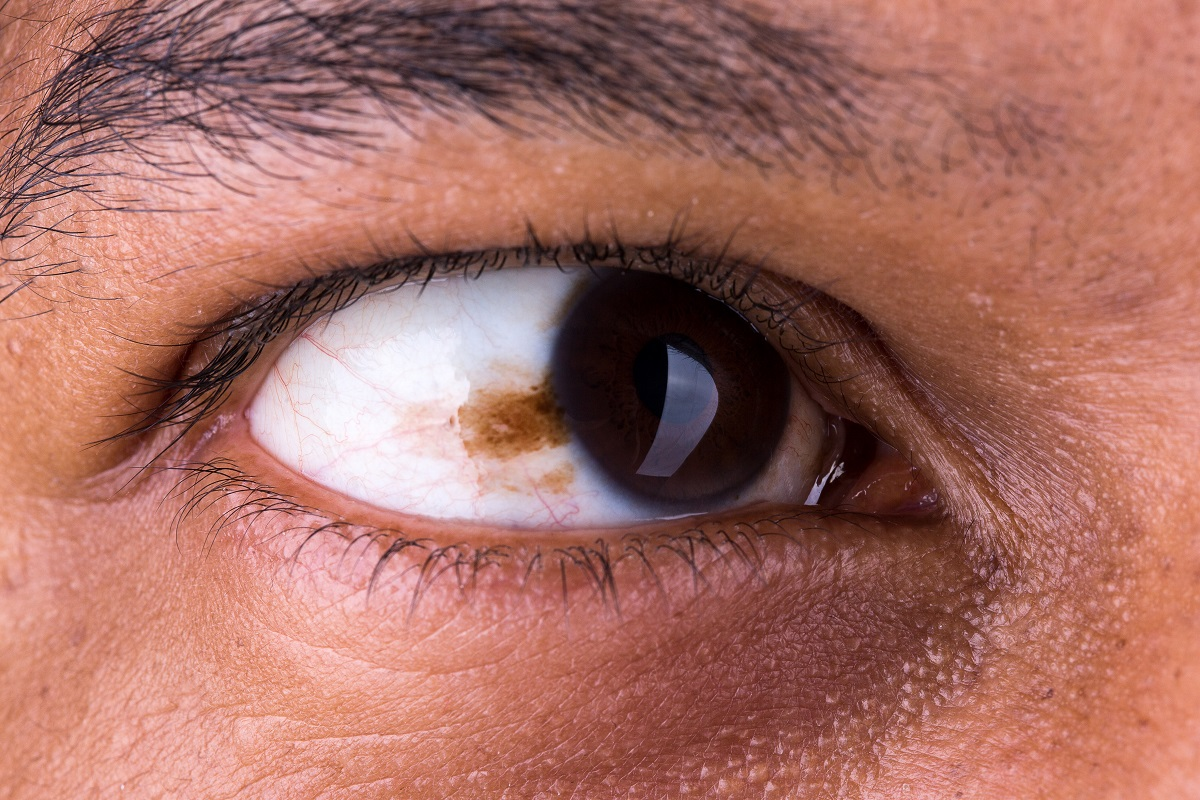 Signs of eye cancer