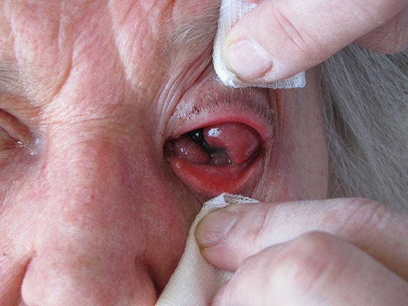 Advanced conjunctival carcinoma protruding through the palpebral fissure