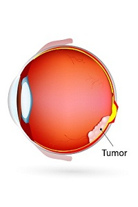 Tumor Behind Eye: What Does It Mean? Is It Cancer?