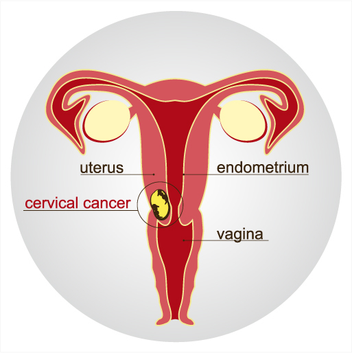 Cerival cancer image