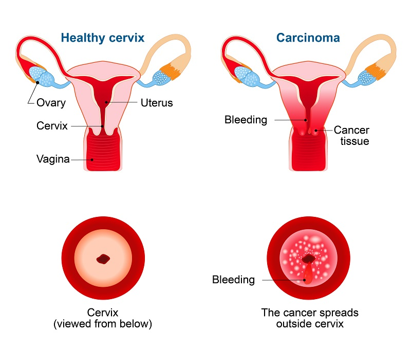 Image of a healthy cervix vs a cervix with cervical cancer