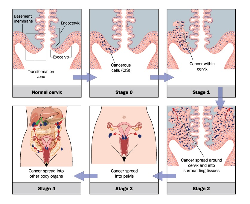 An illustration of the development of cervical cancer
