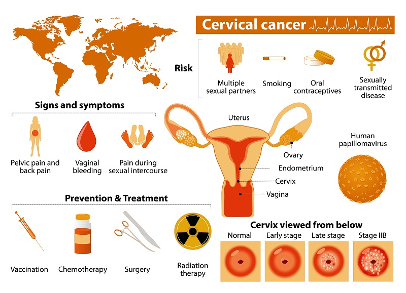 Photo showing an overview of cervical cancer