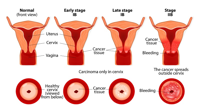 Image of cervix