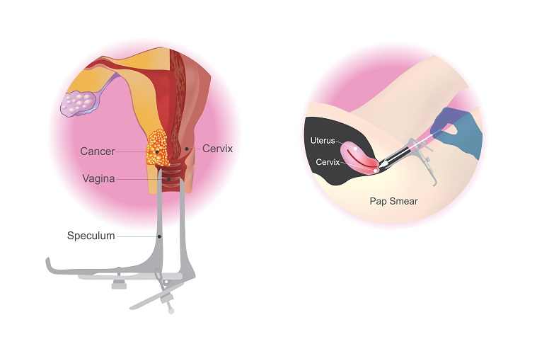 Pap smear procedure for cancer diagnosis