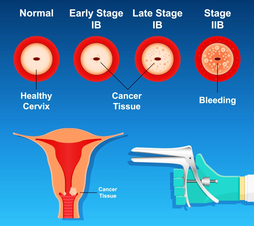 Cervical cancer screening photo