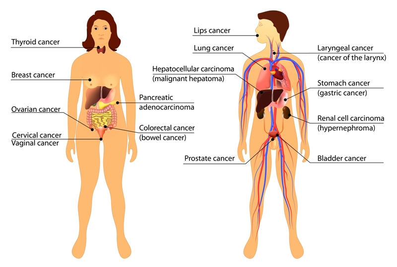 An image showing types of cancers