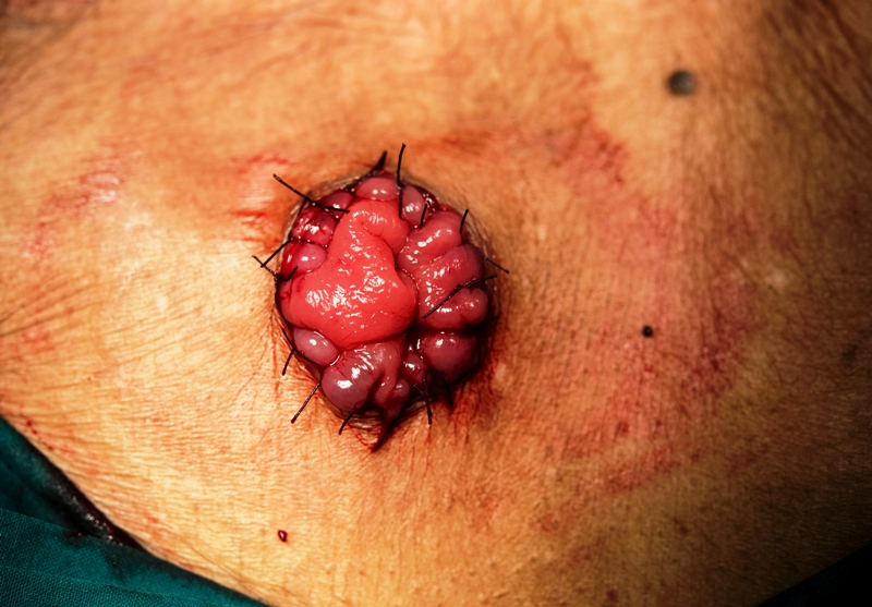 Colostomy surgery photograph in a patient