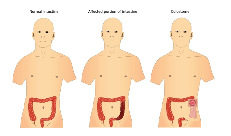 Surgery of intestine: colostomy, colostomy pouch