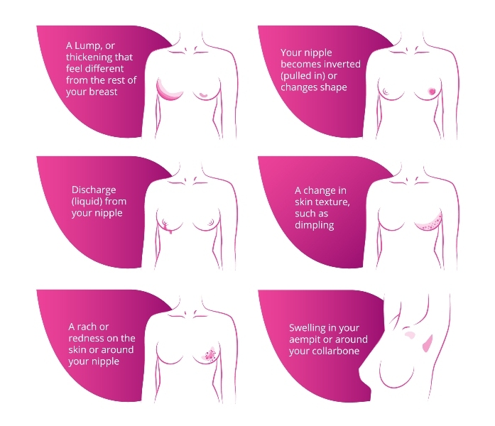 How do I check my breasts for breast cancer?