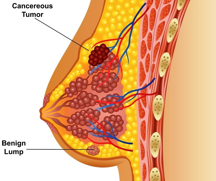 Illustration of cancerous breast tumor