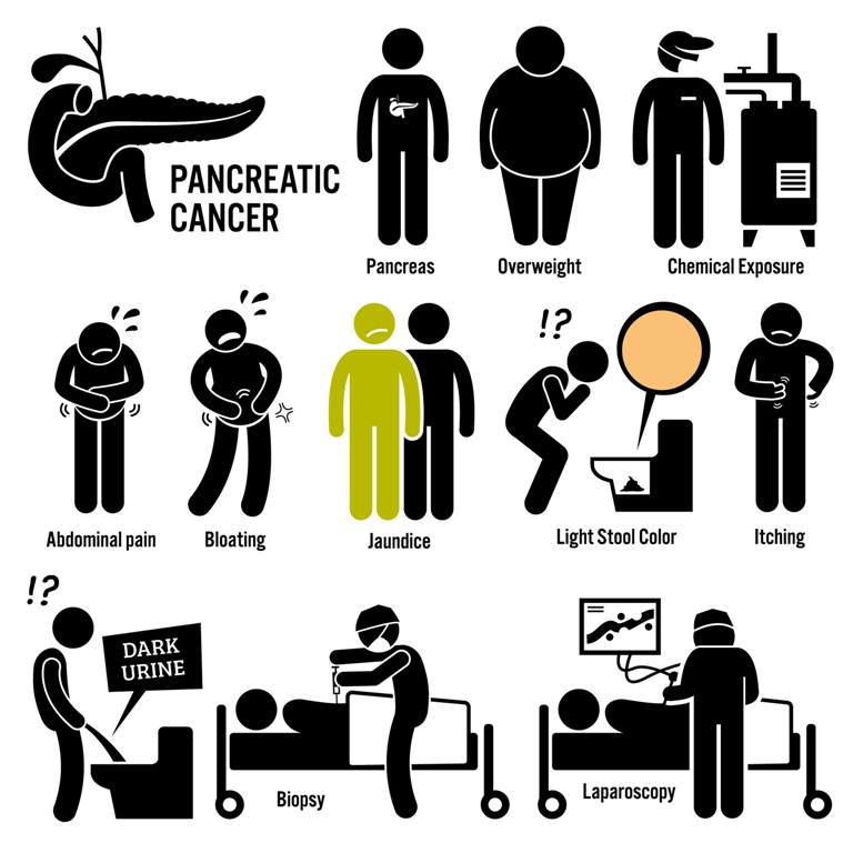 Pancreatic cancer symptoms image