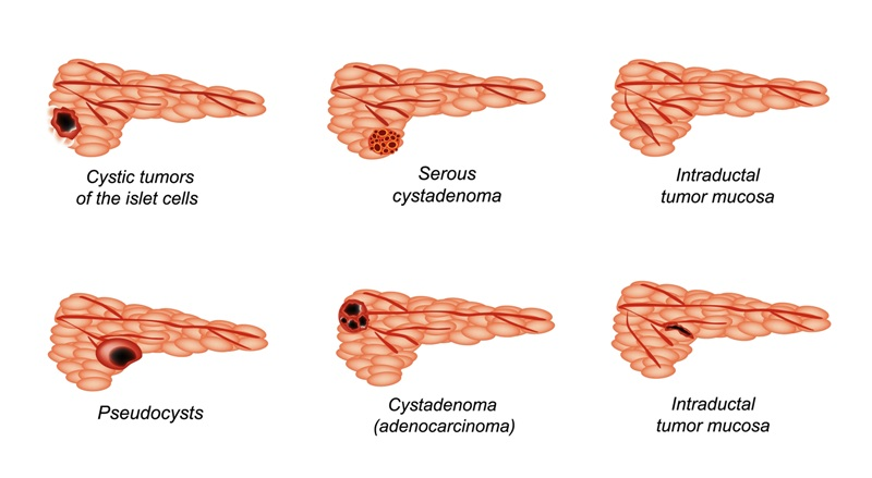 Types of pancreatic cancer