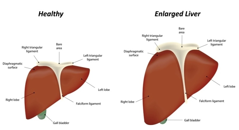 Enlarged gallbladder or Liver