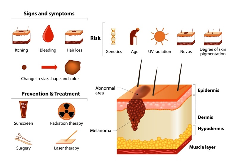 Signs, Symptoms, Prevention, Treatment of Melanoma