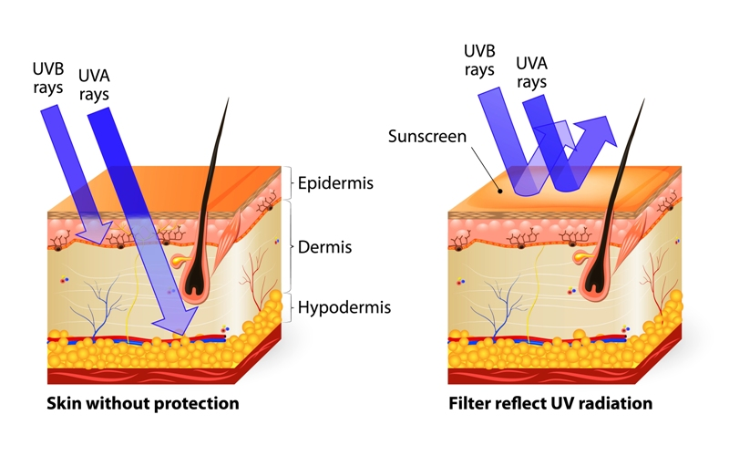 Ultra violet (UV) rays penetration deep into the skin